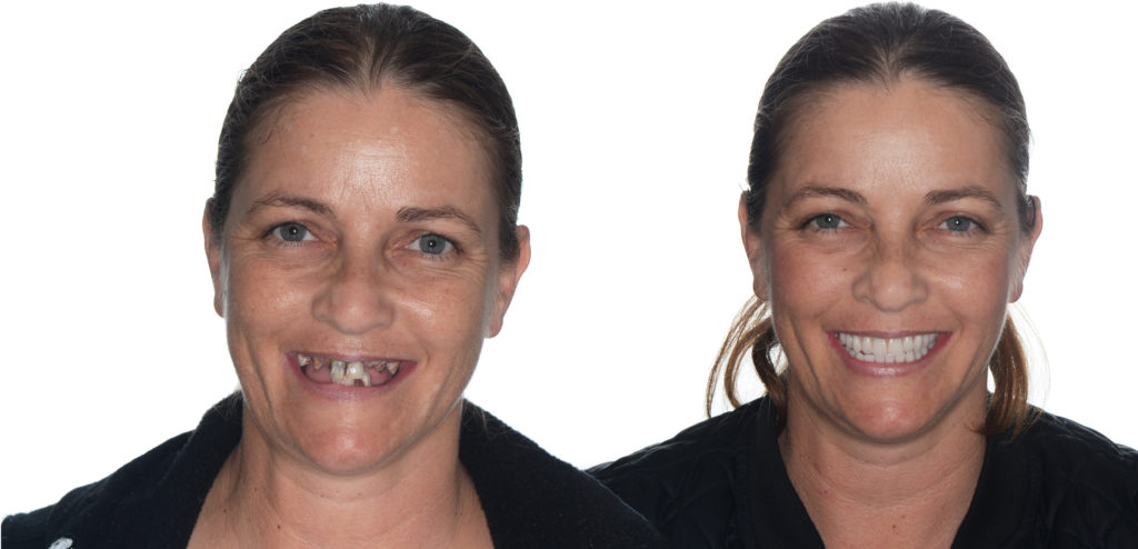 Dental Implants before and after.