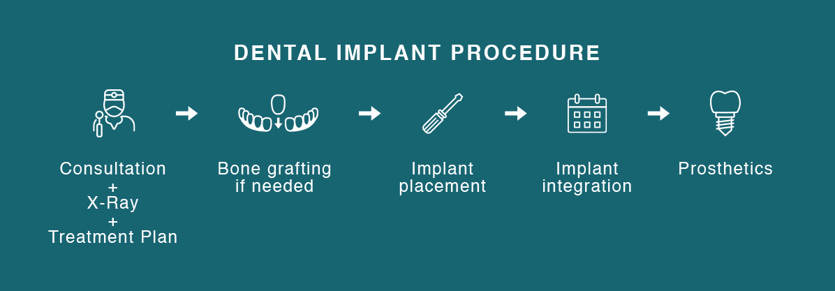 Mid All 4 Procedure Infographic